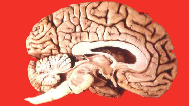 Human_brain_midsagittal_cut_