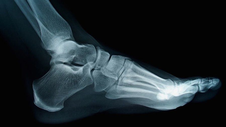Ankle_xray