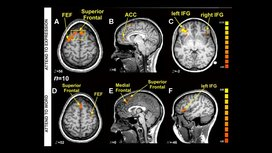 Fmri-images