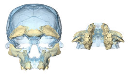 Face-and-jaw-reconstruction