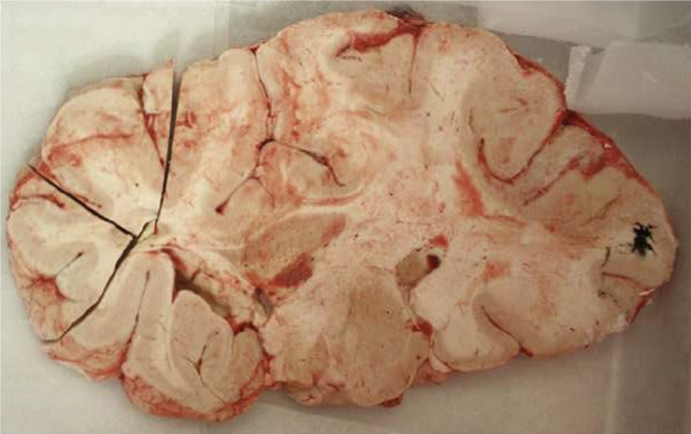 Donated brain used in study