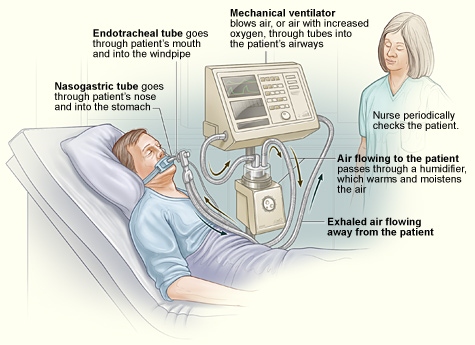ventilater associated pneumonia Ventilator associated pneumonia (vap) is defined as pneumonia occurring in a patient within 48 hours or more after intubation with an endotracheal tube or.