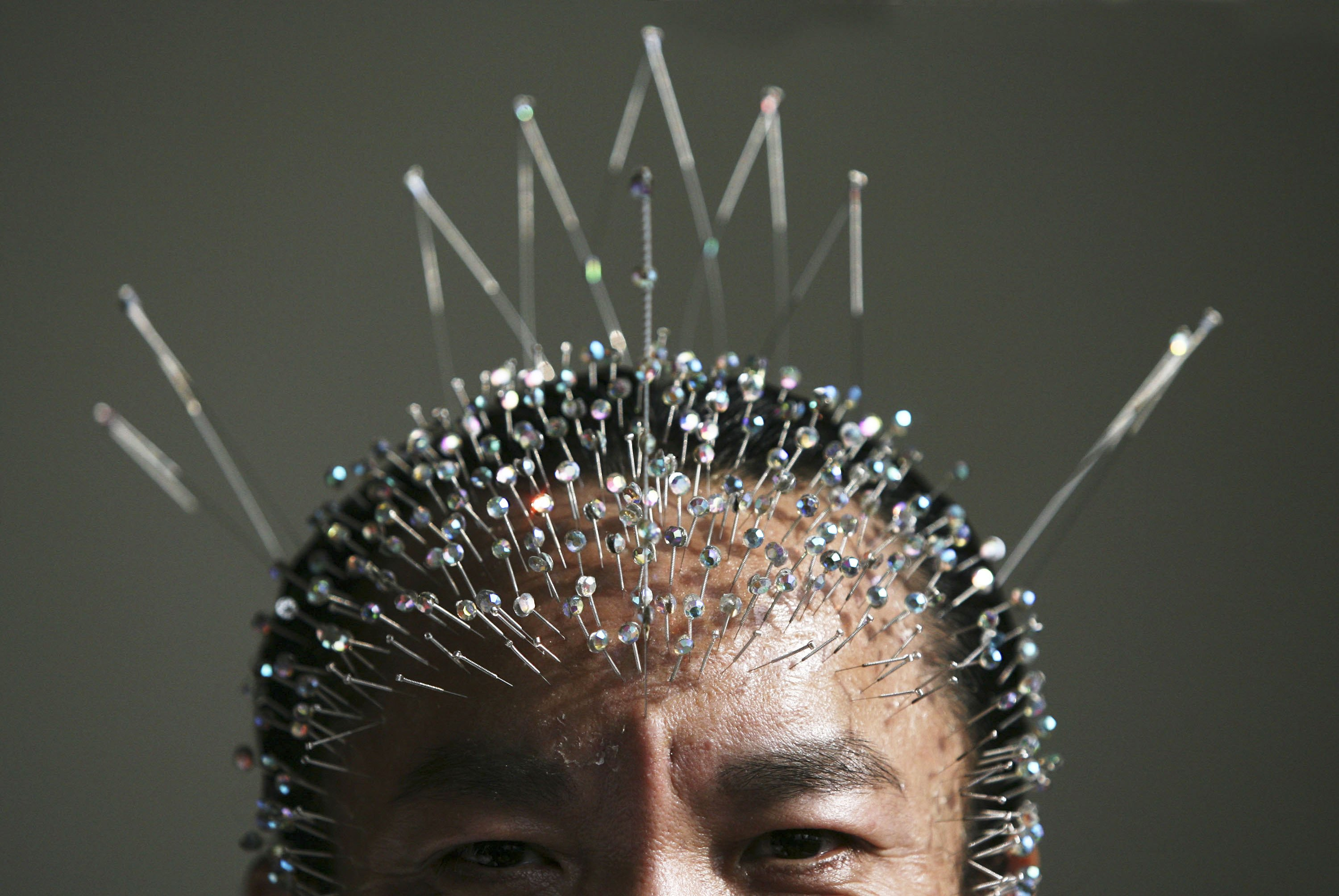 Does Acupuncture Work by Re-Mapping the Brain? | Big Think
